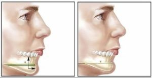 chin surgery colombia