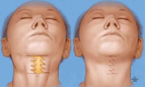 neck rejuvenation colombia