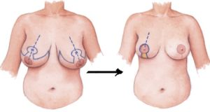 reduction mammoplasty colombia