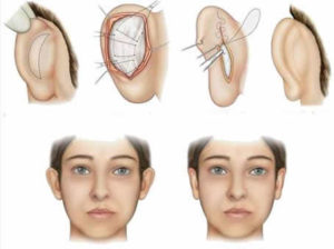ear surgery colombia