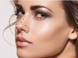 rhinoplasty colombia